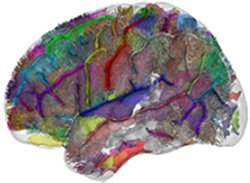 Understanding autism: novel brain imaging study challenges the dominant explanation - News