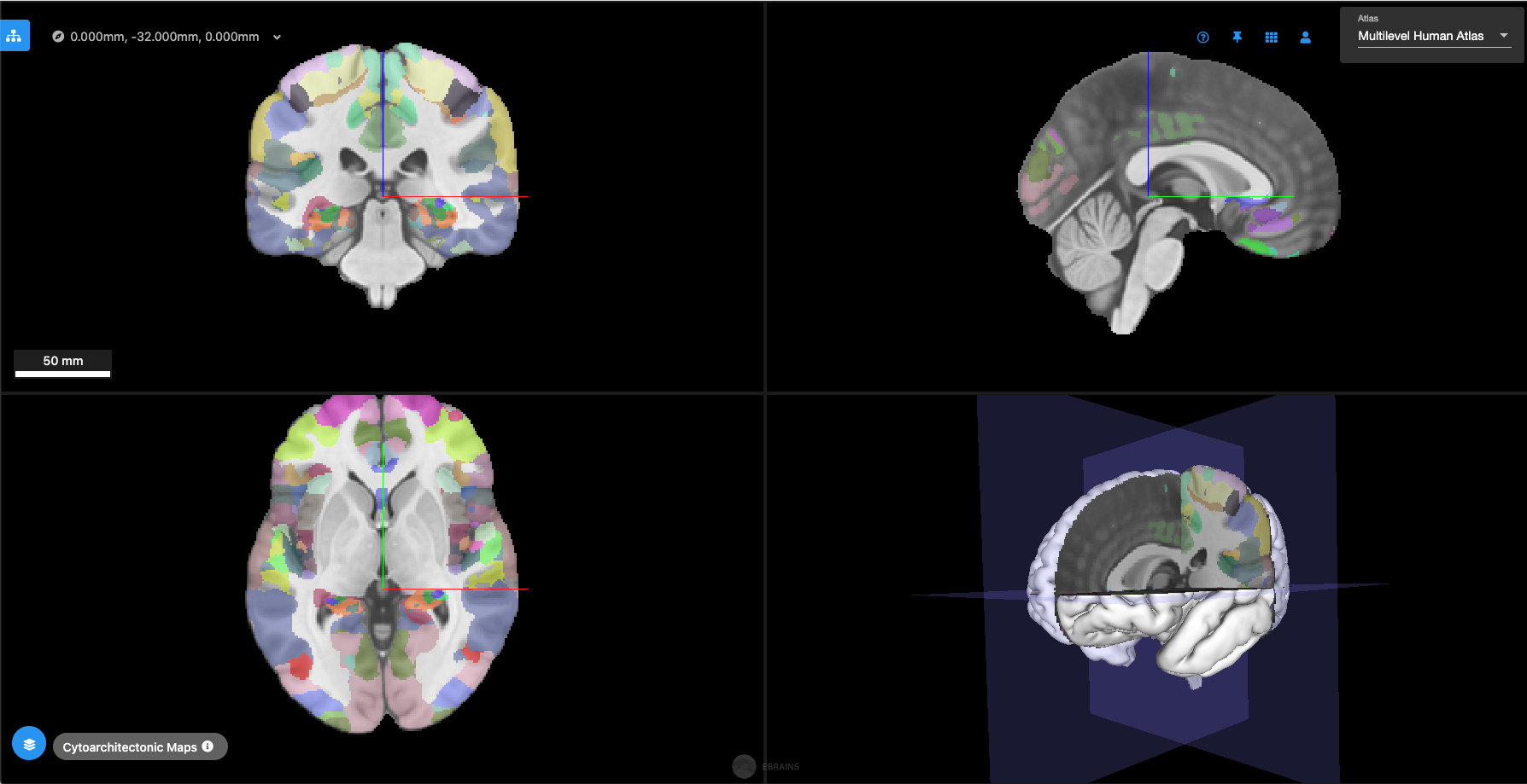 New release of the EBRAINS Interactive Atlas Viewer.png