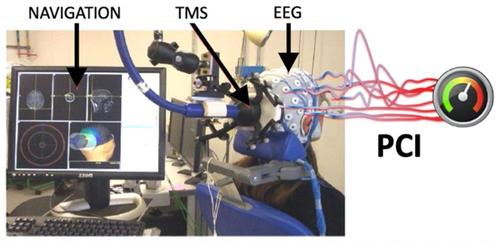 Experimental setup of PCI measurements .png