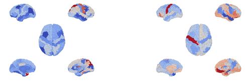 Brain Models 4.png