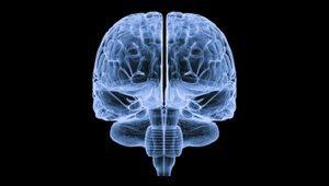 brain2.png__400x170_q85_subsampling-2_upscale.jpg